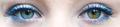 Segmental heterochromia in left eye.png