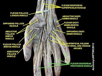 Flexor digitorum profundus muscle - Image: Slide 15OOOO
