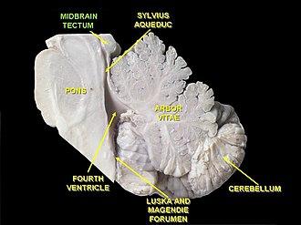 Tectum - Image: Slide 4qq