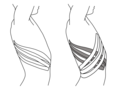 Tape-fractured-rib.png