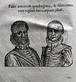 Ulisse aldrovandi, monstrorum historia, per nicola tebaldini, bologna 1642, 013 ipertricotismo.jpg