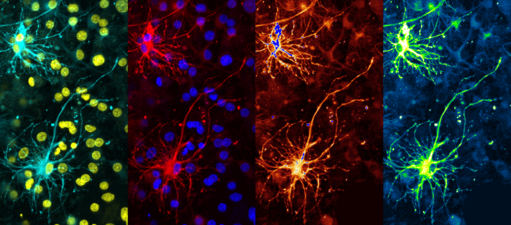 Warhol's Neuron.png