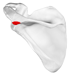Acromial angle - Left scapula. Posterior view. Acromional angle shown in red.