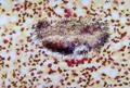 Actinomycetoma 01.png