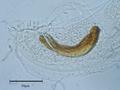 Aelurostrongylus falciformis.png