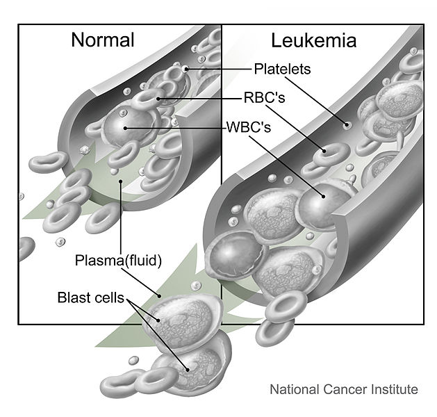 the causes and treatment of leukemia cancer of blood cells Chronic lymphocytic leukemia is a type of cancer in which the bone marrow  makes too  white blood cells that fight infection and disease.