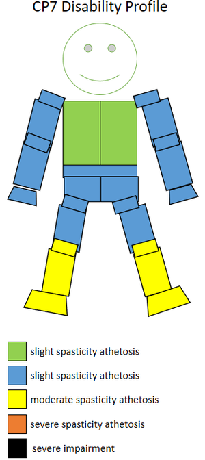 S9 (classification) - The spasticity athetosis level and location of a CP7 sportsperson.