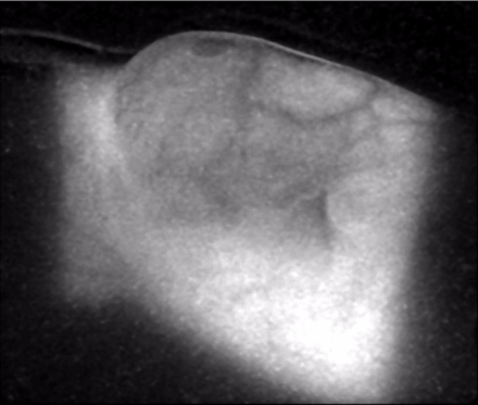 Cherenkov light emission imaged from the chest wall of a patient undergoing whole breast irradiation, using 6 MeV beam from a linear accelerator in radiotherapy. Cherenkov-breast.png