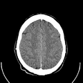 Computed tomography of human brain (23).png