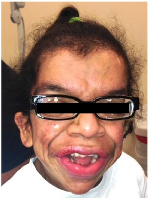 Costello syndrome facial manifestation 17-year-old female.png