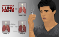 Depiction of a person smoking and stages of Lung Cancer.png
