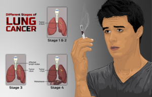 Depiction of a person smoking and stages of Lung Cancer