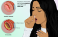 Depiction of a person suffering from Bronchitis.png