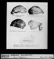 ETH-BIB-Schädel Neandertal, Spy, Crapina-Dia 247-03325.tif