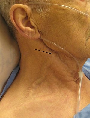 Jugular venous pressure - A man with congestive heart failure and marked jugular venous distention.  External jugular vein marked by an arrow; however, JVP is not measured by looking at the external jugular vein even but is instead measured by pulsations of the skin from the internal jugular vein, which is not visible in this image.