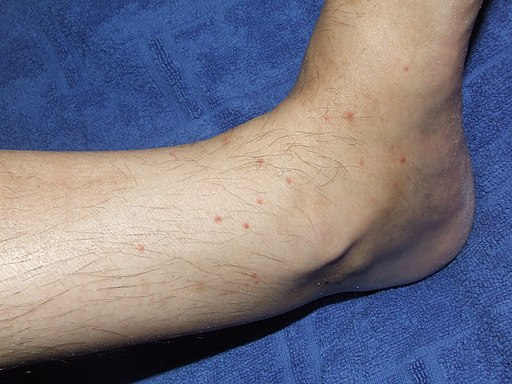 Flea Bites to the Lower Leg of a Human Subject