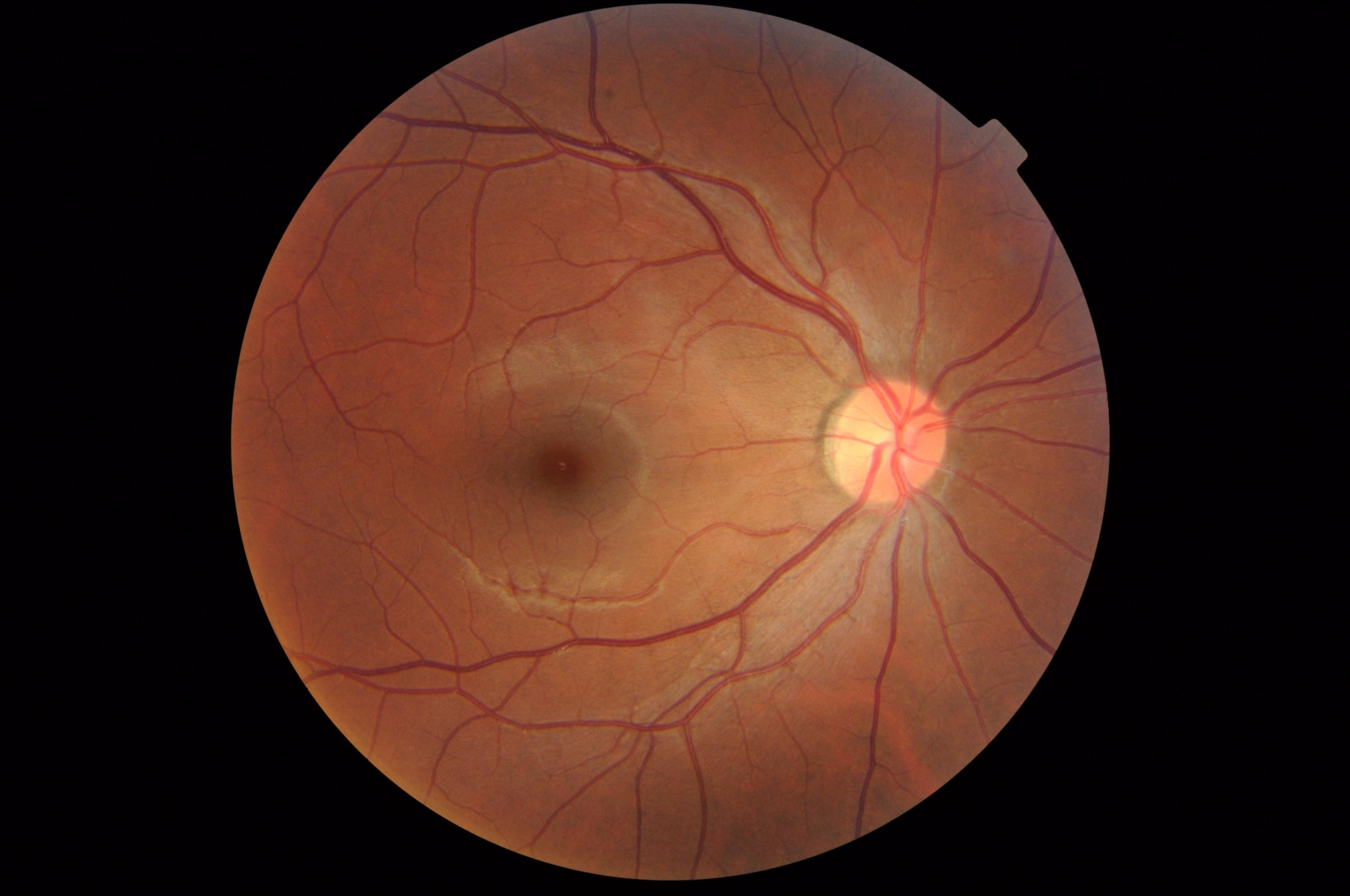 Fundus photograph of a healthy right eye (OD) from a myopic Asian male patient. Age 23