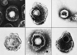 Herpesviridae EM PHIL 2171 lores.jpg