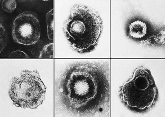 Herpesvirales - Electron micrograph of various viruses from the Herpesviridae family including Human alphaherpesvirus 3 (Chickenpox), Human alphaherpesvirus 1, and Human alphaherpesvirus 2