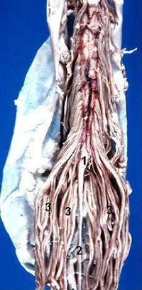 Human caudal spinal cord anterior view description.jpg