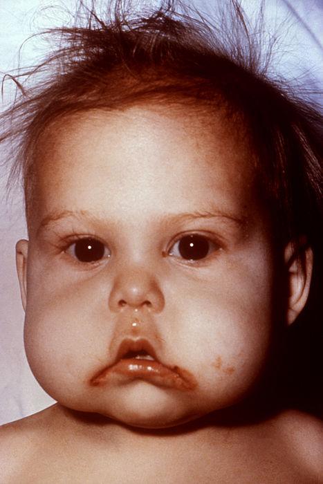 Отечность лица у ребенка фото