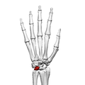 Lunate bone (left hand) 02 dorsal view.png