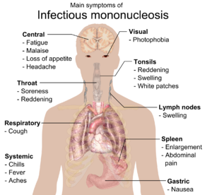 Infectious mononucleosis - Wikipedia