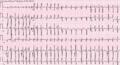 Multifocal atrial tachycardia - MAT.png