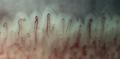 Nailfold Capillaries.png