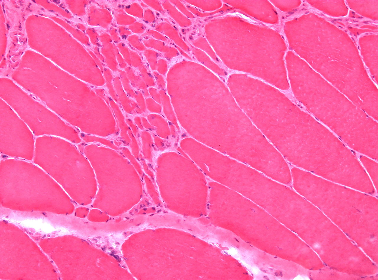 file:neurogenic atrophy muscle biopsy he x100 - wikimedia commons, Muscles