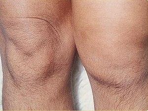 Psoriatic arthritis sexuality