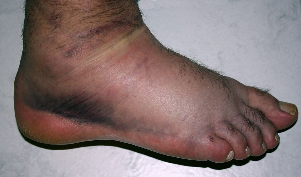 Image result for severe sprained ankle