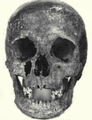 Skull of Anne de Antiochia.png
