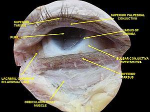 Lacrimal caruncle - Image: Slide 2www