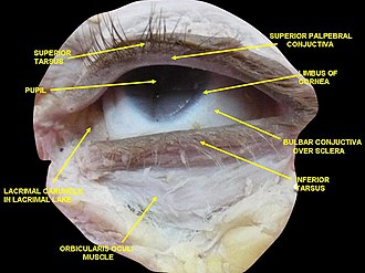 Tarsus (eyelids) - Image: Slide 2www