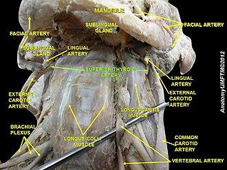 Superior thyroid artery - Image: Slide 3jjj