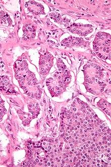 Adenocarcinom prostatic grad ||| de diferentiere, Scor Gleason:4+3=7. | Forumul Medical ROmedic