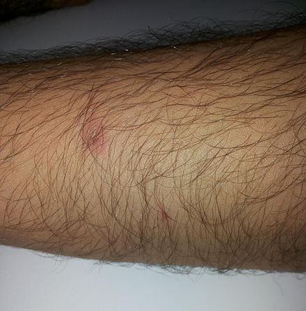 Superficial chemical burn caused by two 98% sulfuric acid splashes (forearm skin) Sulfuric acid 98%25 chemical burn.jpg