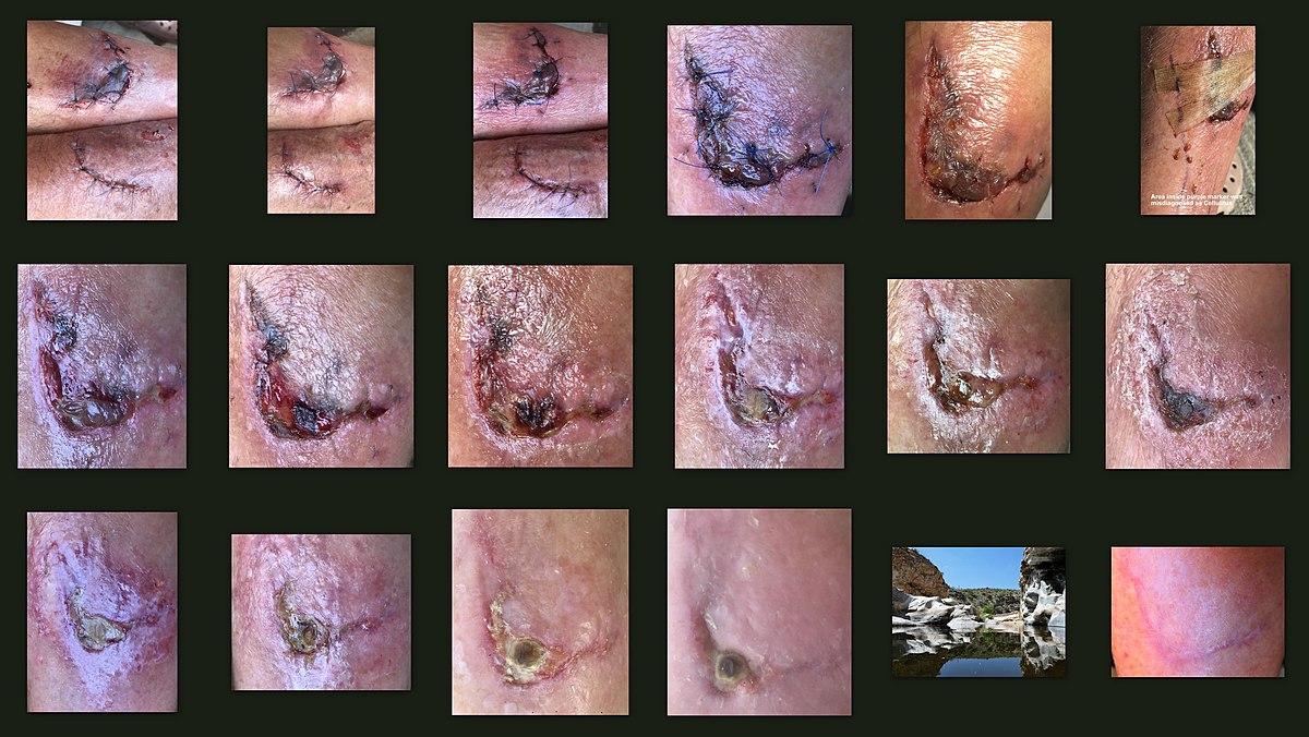 Wound healing - Wikipedia