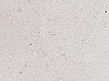 Wuchereria bancrofti (YPM IZ 093328).jpeg