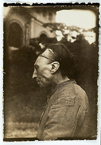 """Artificial cranial deformation - Deliberate deformity of the skull, """"Toulouse deformity"""", band visible in photograph is used to induce shape change."""