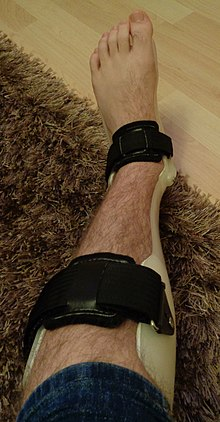 AFO Ankle Foot Orthosis Orthotic Brace.JPG