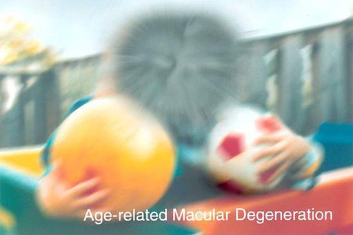 A scene as it might be viewed by a person with age-related macular degeneration EDS05
