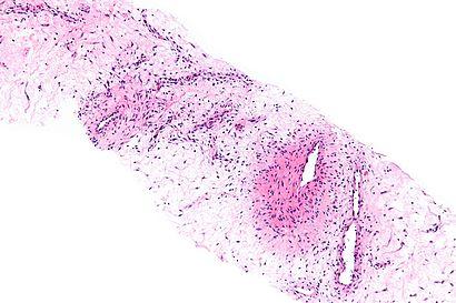 Aggressive angiomyxoma - intermed mag.jpg