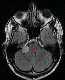 Facial Acoustic damage neuroma nerve