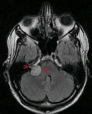 English: benign tumour: acoustic neuroma (also...