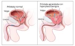 valores de normalidad del volumen prostático