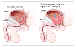 como es la operacion de cancer de prostata