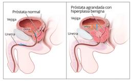 hiperplasia de turpin de próstata media