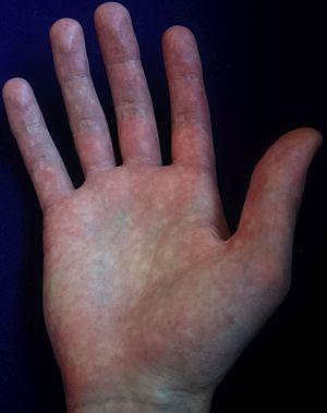 Bier spots - Hand with multiple Bier spots
